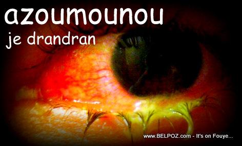 Azoumounou - Pink Eye - Conjunctivitis in Haiti