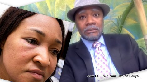 AUDIO: Tonton Bicha reacts to violence against Nice Simon (Anne) by her man Yves Leonard