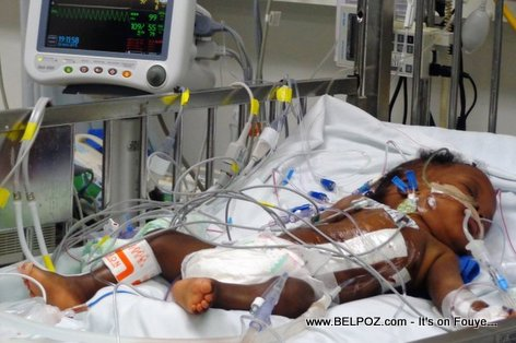 Haiti Medical - Conjoined Twin separated in Mirebalais University Hospital